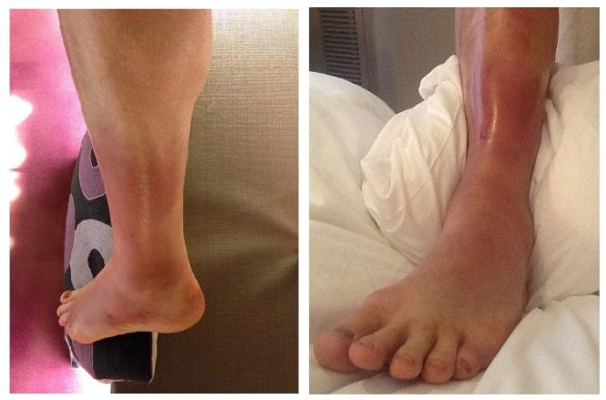 WTM12 Ankles